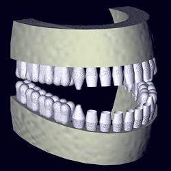 DVT-scan-MagoCut-bild4-dvtreconstructed